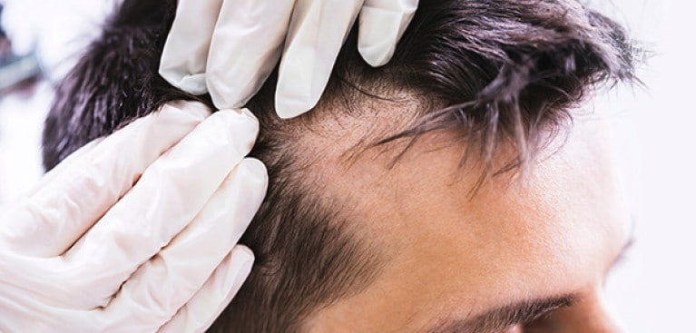 Dermatologist checking scalp