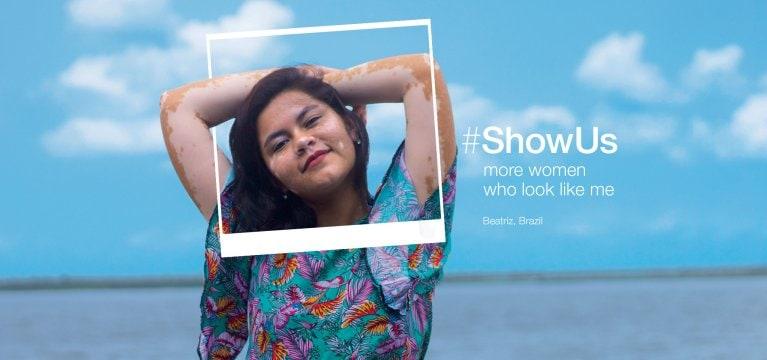 Dove Project #ShowUs